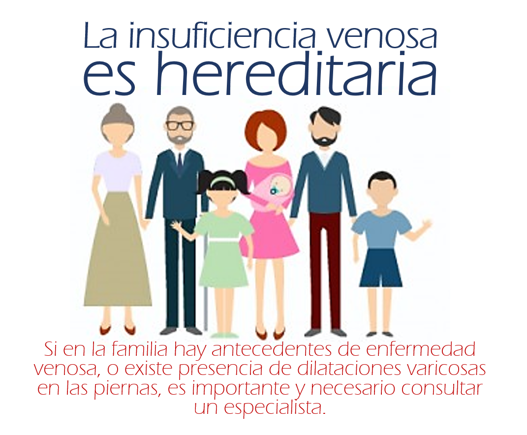 La insuficiencia venosa es hereditaria